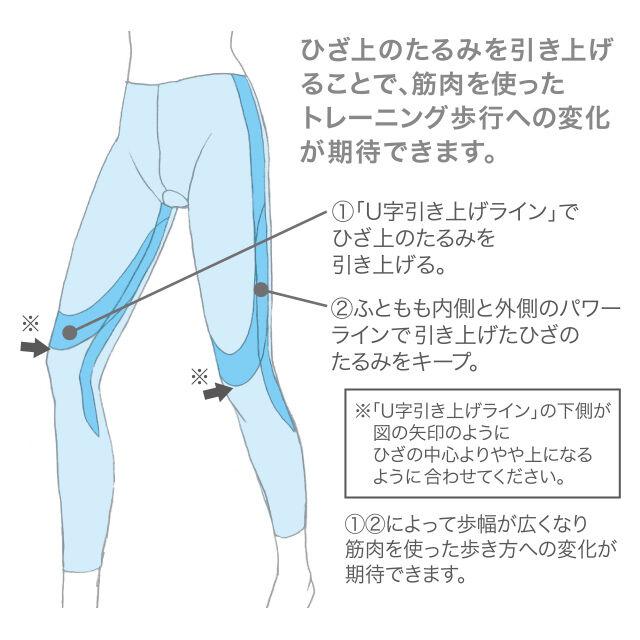 ひざ上のたるみを引き上げることで、筋肉を使ったトレーニング歩行への変化が期待できます。